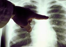 Диагностика болезней органов дыхания