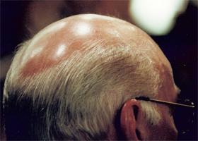 Wovon das Haar in 20 Jahre prolabiert