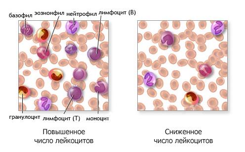 leukozytenzahl im blut