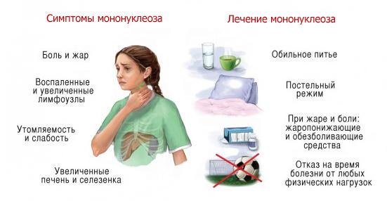 Мононуклеоз уей: симптомы и лечение, фото