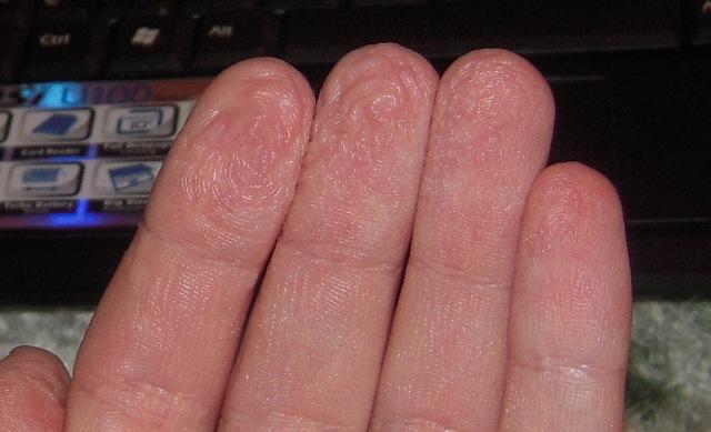 Crema da eczema su mani a gravidanza