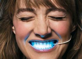 Домашнее зубное отбеливание