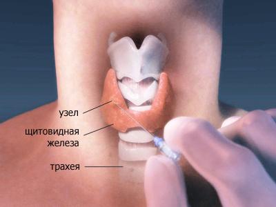 Узлы щитовидной железы, фото